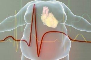 Terapia nutrizionale per Cardiopatici, ipertesi, dislipidemici